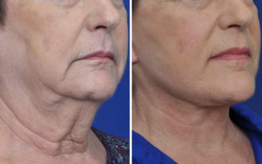 Annapolis Facelift Patient 6 Before and After Obl