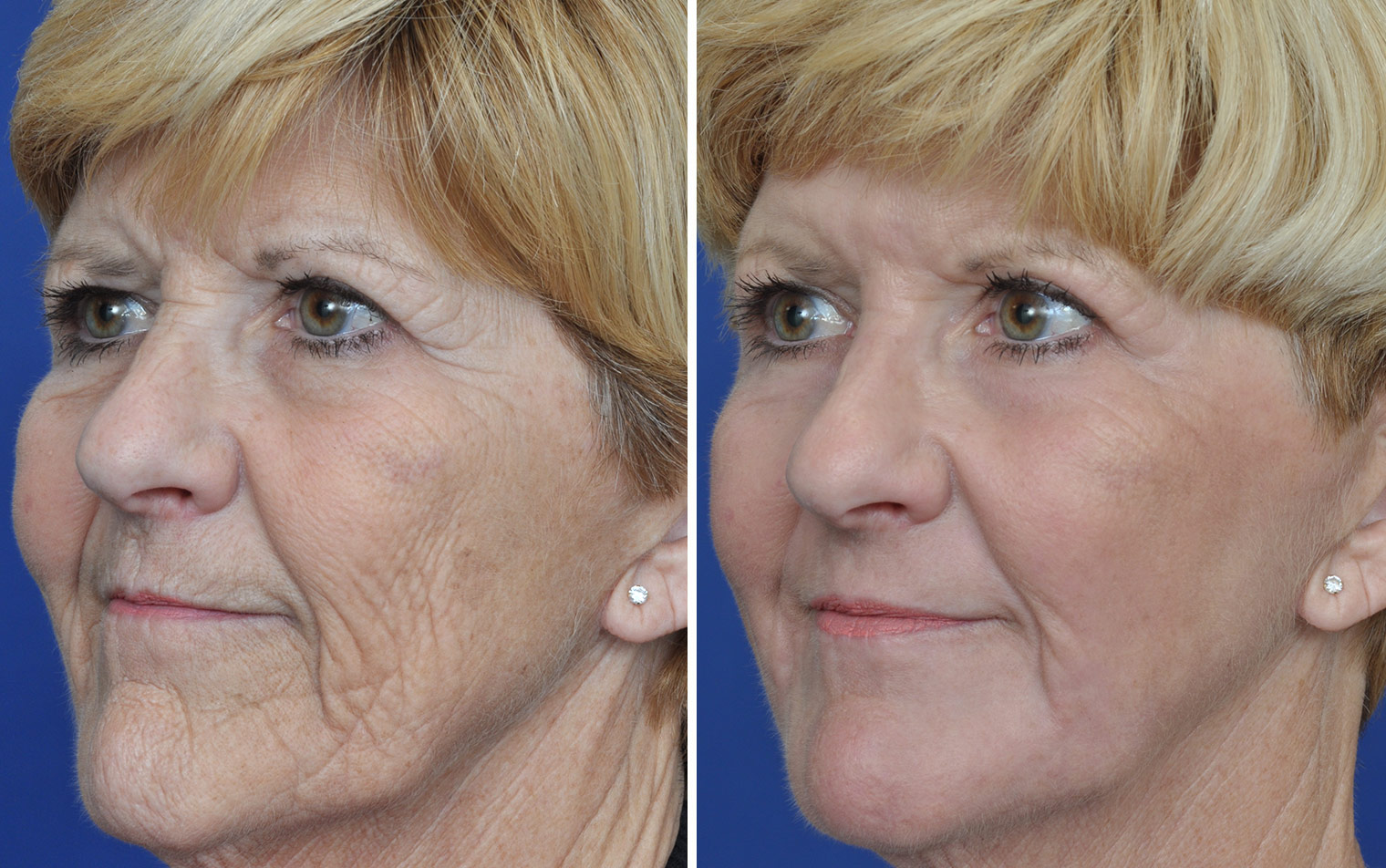 Facial resurfacing before and after all not