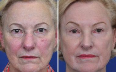 Annapolis Eyelid Surgery