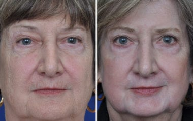 Annapolis Plastic Surgery Deep Laser Skin Resurfacing
