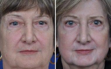 Annapolis Plastic Surgery Deep Laser Skin Resurfacing