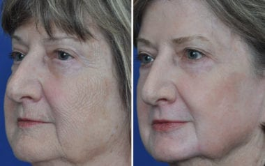 Wrinkle reduction surgery Annapolis