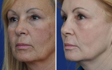Maryland Laser Skin Resurfacing