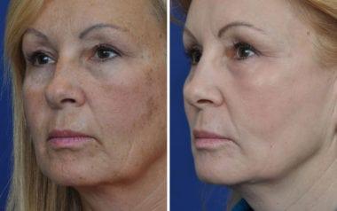 Maryland Laser Skin Resurfacing
