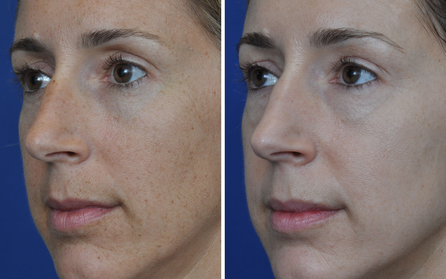 Sorry, that Facial resurfacing before and after