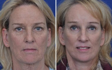Annapolis Facelift Surgery Professionals