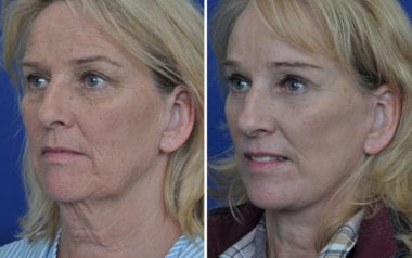 Maryland Facelift Surgery Annapolis