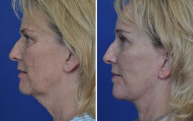Facelift Doctor Maryland
