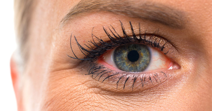 The-Benefits-of-a-Blepharoplasty